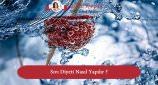 Sıvı Diyeti Nedir ? Nasıl Yapılır ?